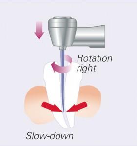 MO_cp_torque_slow_down_2_en